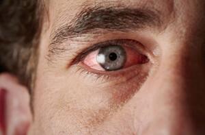 EyeHealthDisease_Conjunctivitis-700x460